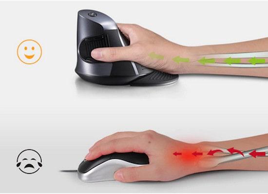 croisement des tendons souris ergonomique verticale douleur canal carpien